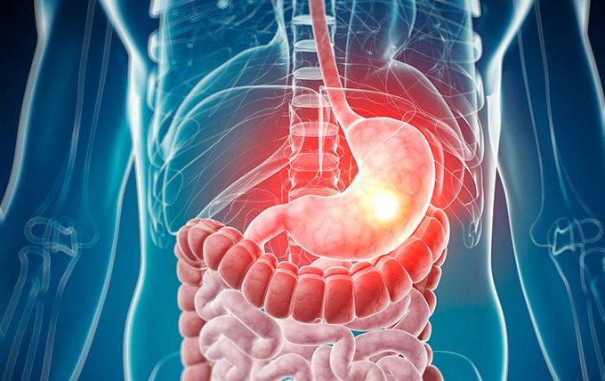 Инсулинома поджелудочной железы у человека: симптомы и диагностика