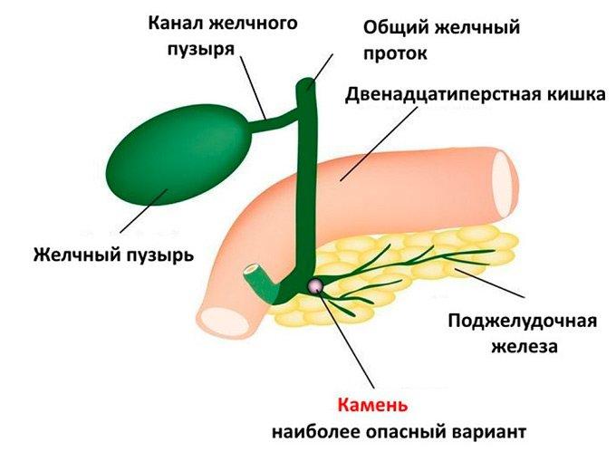 Диффузные изменения паренхимы поджелудочной железы: что означает?