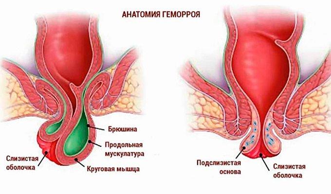 Геморрой после родов: при грудном вскармливании.