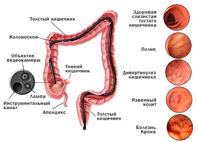 Колоноскопия кишечника: подготовка к процедуре