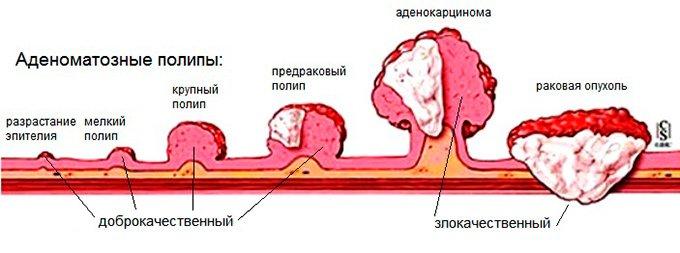 Полипы в кишечнике: симптомы и лечение