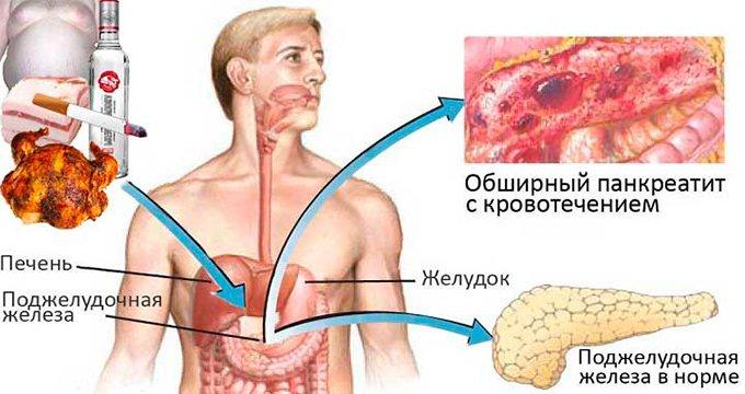 Острый и хронический билиарнозависимый панкреатит . Симптомы и лечение